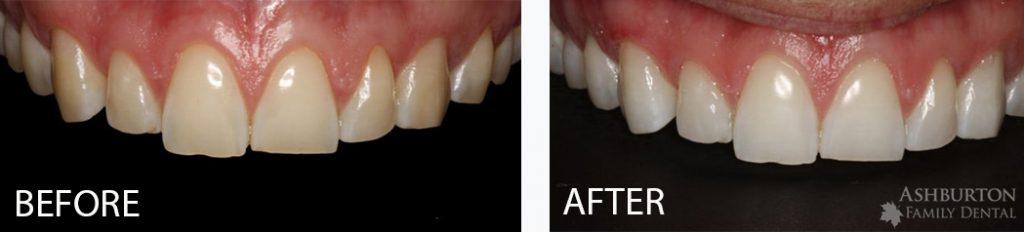 Wedding Teeth Whitening